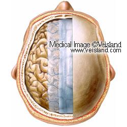 Hjärnans hinnor. Veisland - Medical Image