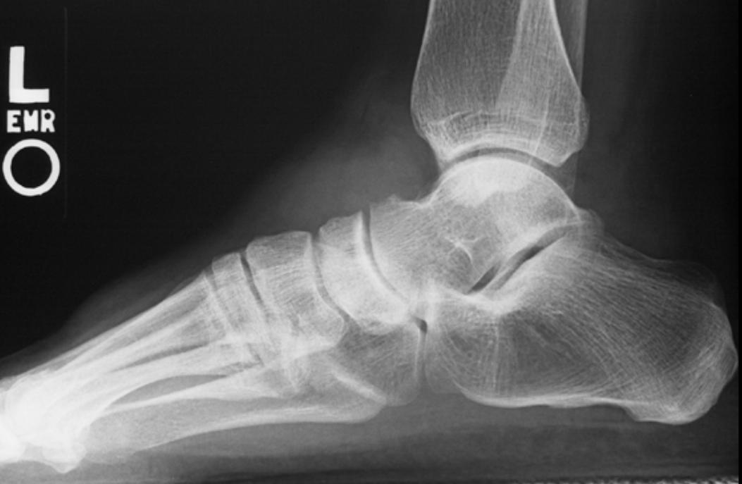 Tratamentul cu fracturi spirituale diculum
