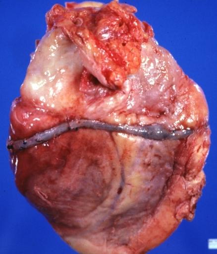 Saphenous Vein Graft Surgery