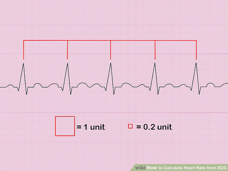 Formula Calculate Heart Rate Ecg