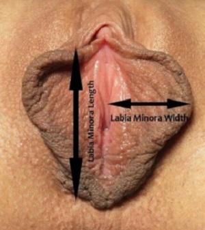 Как измерить длину и ширину малой половой губы