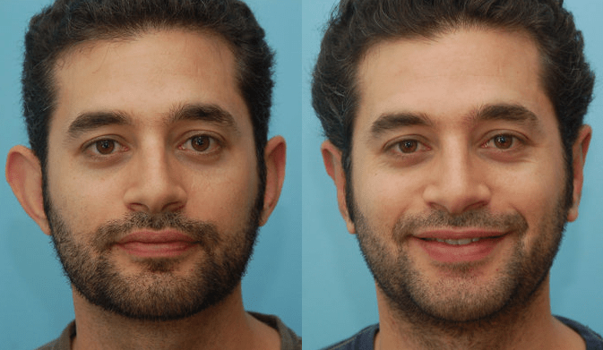 Recovery Septum Time Deviated Rhinoplasty